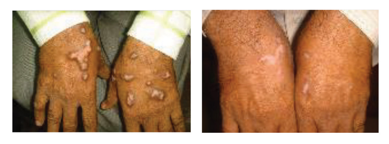 Psoriasis before and after 22 sessions. Photo courtesy Dr. Sakhiya